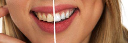 consigli per lo sbiancamento dei denti
