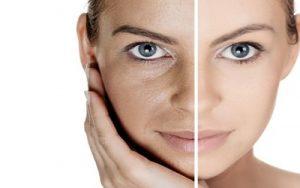 come curare la pelle grassa